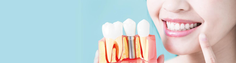 Dental Implants -Kay Dental Care