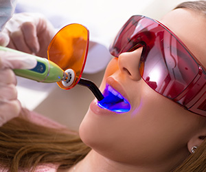 Dental Fillings in Schomberg, Ontario